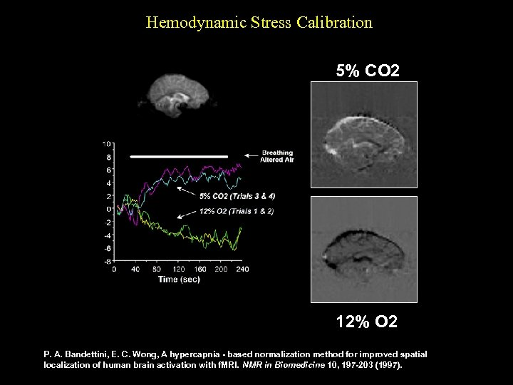 Hemodynamic Stress Calibration 5% CO 2 12% O 2 P. A. Bandettini, E. C.