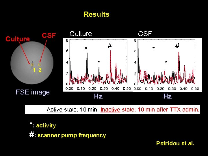 Results CSF Culture CSF # * * 1 2 FSE image * Hz Hz