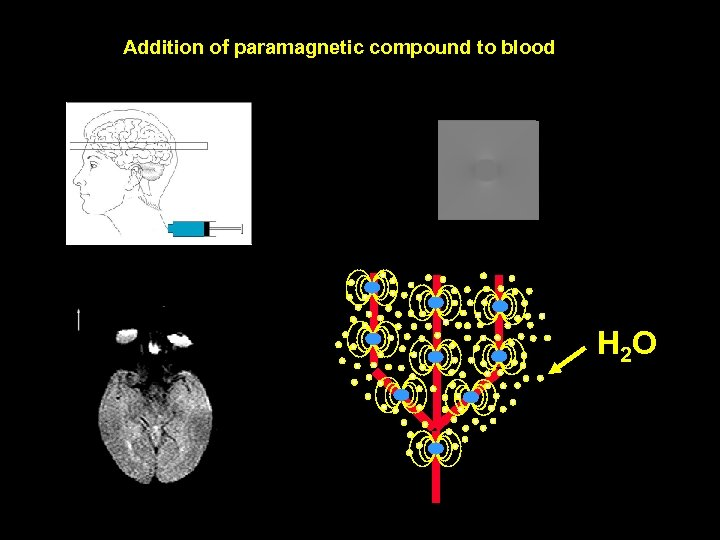 Addition of paramagnetic compound to blood H 2 O