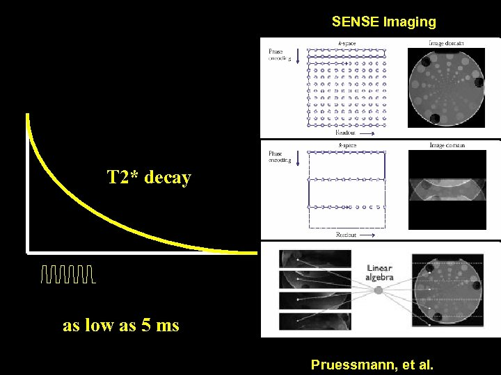 SENSE Imaging T 2* decay as low as 5 ms Pruessmann, et al.