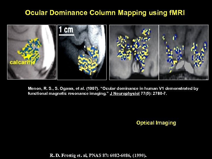 Ocular Dominance Column Mapping using f. MRI calcarine Menon, R. S. , S. Ogawa,