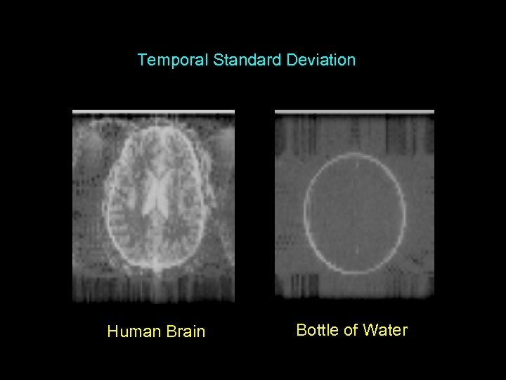 Temporal Standard Deviation Human Brain Bottle of Water