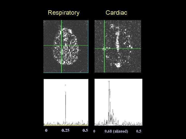 Respiratory 0 0. 25 Cardiac 0. 5 0 0. 68 (aliased) 0. 5