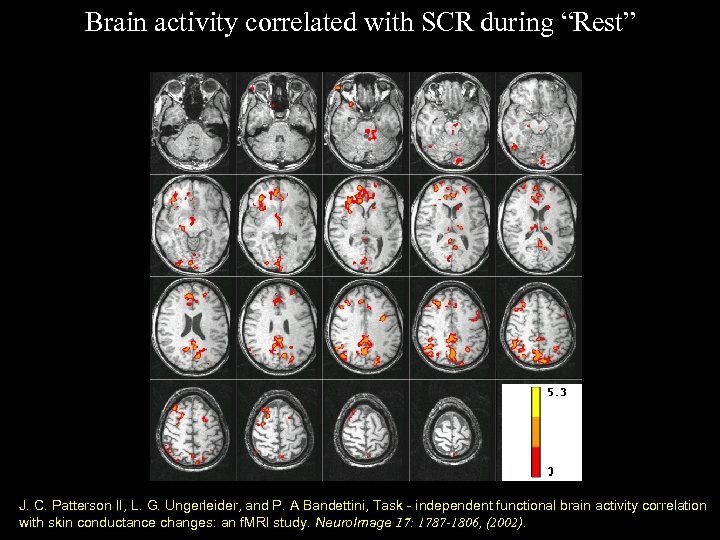 "Brain activity correlated with SCR during ""Rest"" J. C. Patterson II, L. G. Ungerleider,"