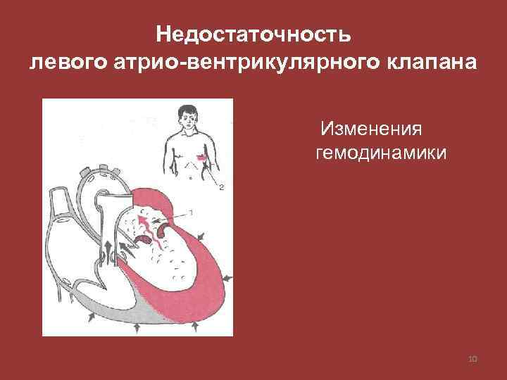 Недостаточность левого атрио-вентрикулярного клапана Изменения гемодинамики 10