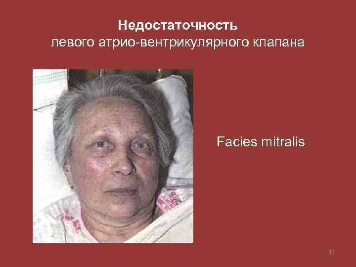 Недостаточность левого атрио-вентрикулярного клапана Facies mitralis 12