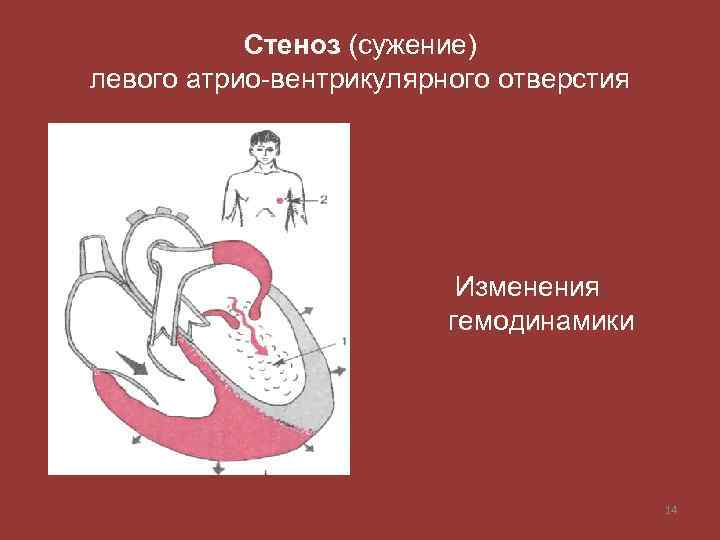 Стеноз (сужение) левого атрио-вентрикулярного отверстия Изменения гемодинамики 14