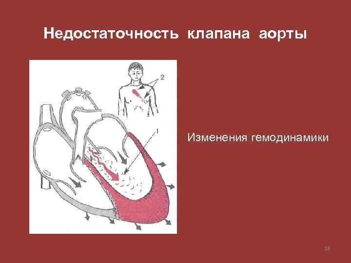Недостаточность клапана аорты Изменения гемодинамики 18