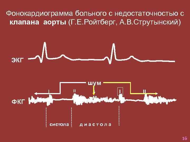 Фонокардиограмма больного с недостаточностью с клапана аорты (Г. Е. Ройтберг, А. В. Струтынский) ЭКГ