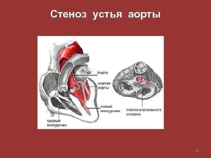 Стеноз устья аорты 24