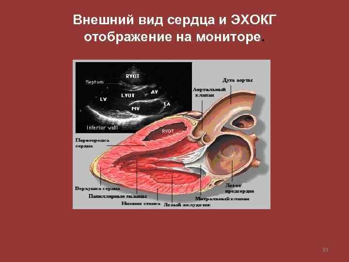 Внешний вид сердца и ЭХОКГ отображение на мониторе. 33