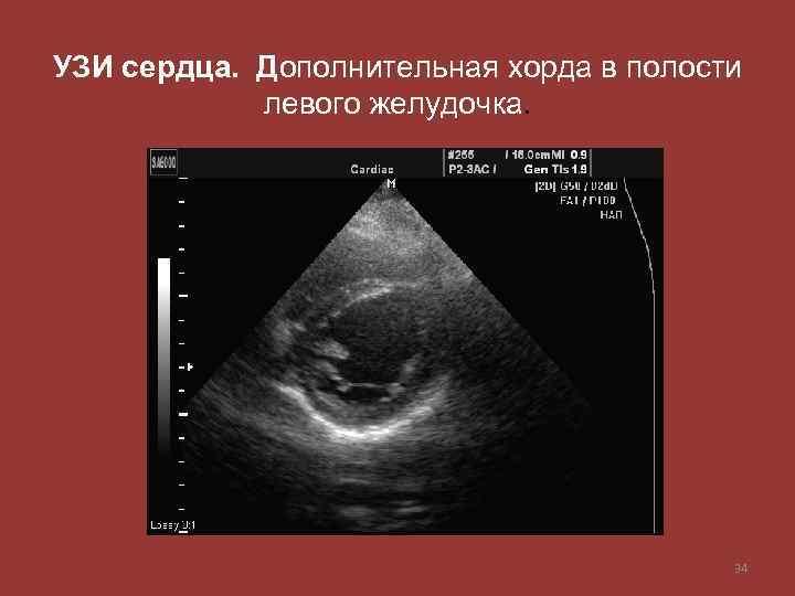 УЗИ сердца. Дополнительная хорда в полости левого желудочка. 34