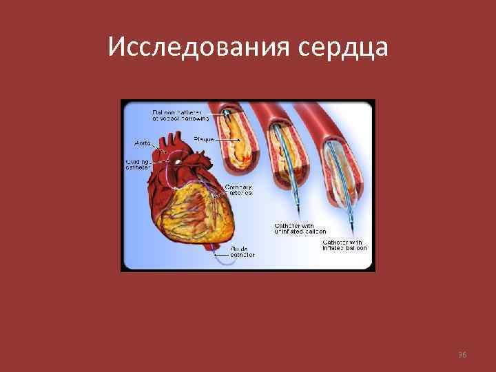 Исследования сердца 36