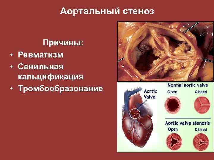 Аортальный стеноз Причины: • Ревматизм • Сенильная кальцификация • Тромбообразование