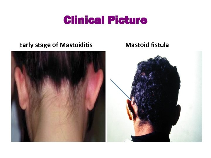 Clinical Picture Early stage of Mastoiditis Mastoid fistula