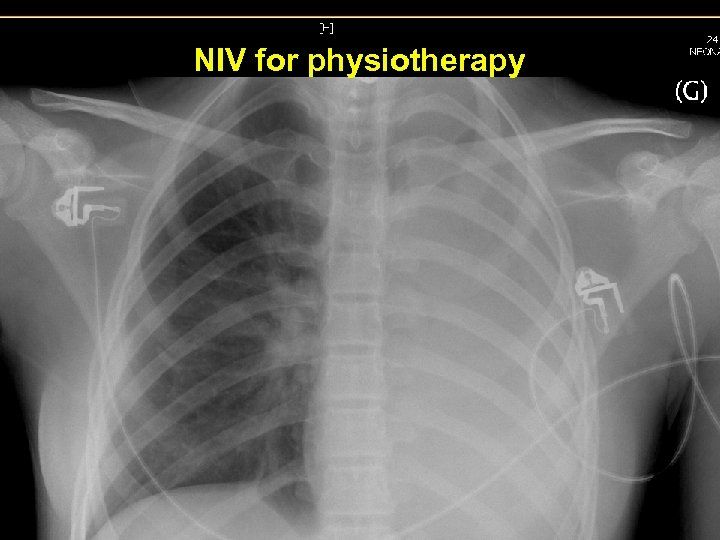 NIV for physiotherapy