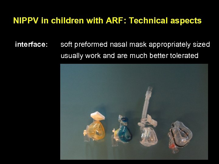 NIPPV in children with ARF: Technical aspects interface: soft preformed nasal mask appropriately sized