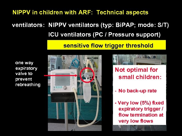 NIPPV in children with ARF: Technical aspects ventilators: NIPPV ventilators (typ: Bi. PAP; mode: