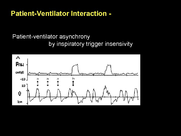 Patient-Ventilator Interaction Patient-ventilator asynchrony by inspiratory trigger insensivity