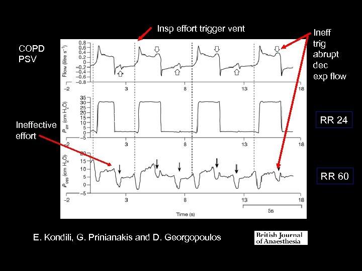 Insp effort trigger vent COPD PSV Ineffective effort (12) Ineff trig abrupt dec exp