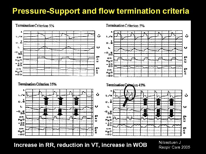 Pressure-Support and flow termination criteria Increase in RR, reduction in VT, increase in WOB