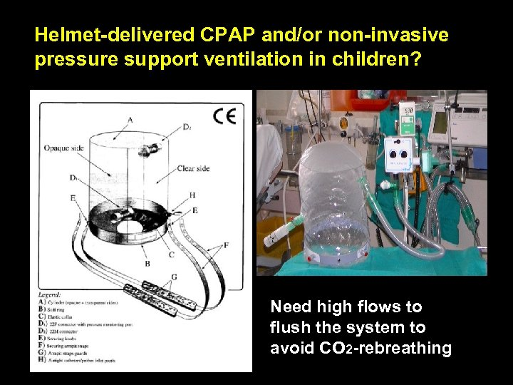 Helmet-delivered CPAP and/or non-invasive pressure support ventilation in children? Need high flows to flush
