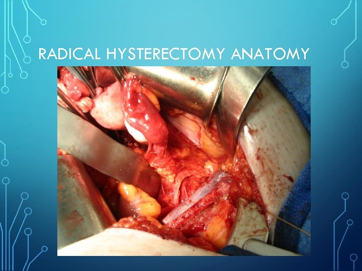 RADICAL HYSTERECTOMY ANATOMY