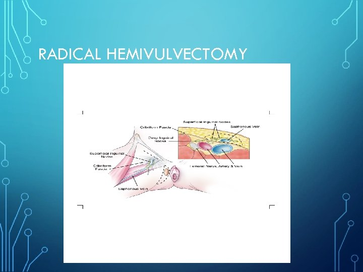 RADICAL HEMIVULVECTOMY