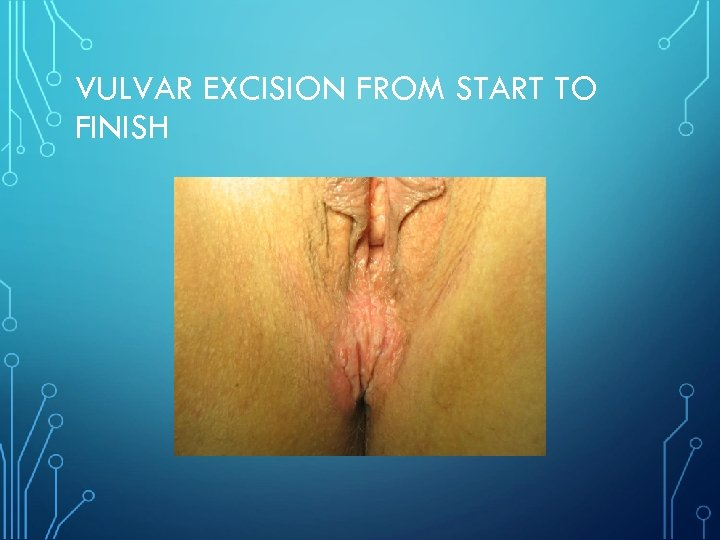 VULVAR EXCISION FROM START TO FINISH