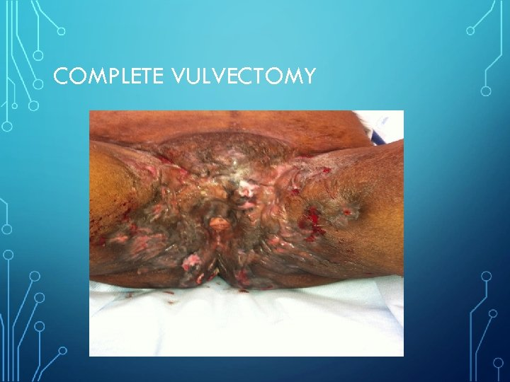 COMPLETE VULVECTOMY