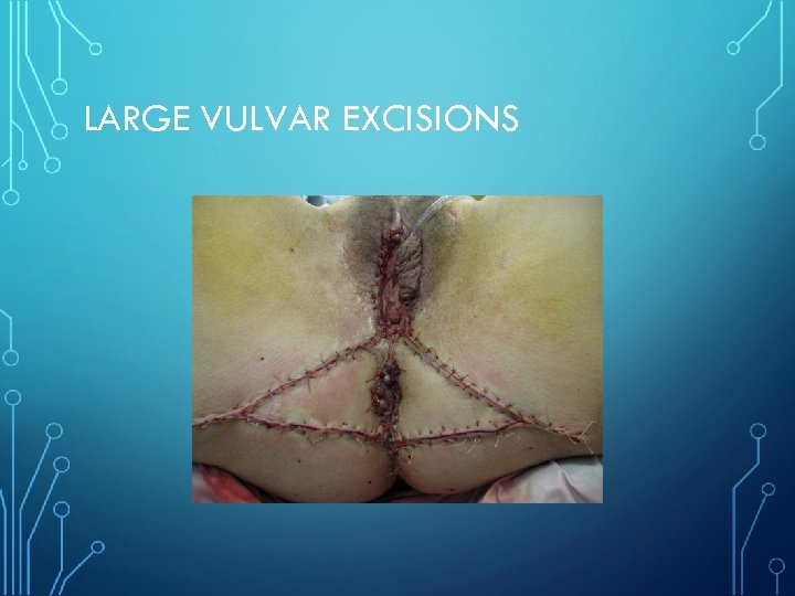 LARGE VULVAR EXCISIONS
