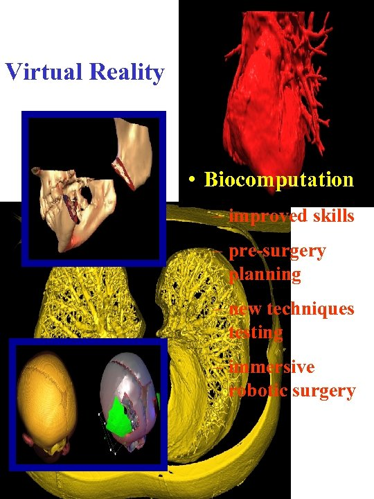 Virtual Reality • Biocomputation – improved skills – pre-surgery planning – new techniques testing