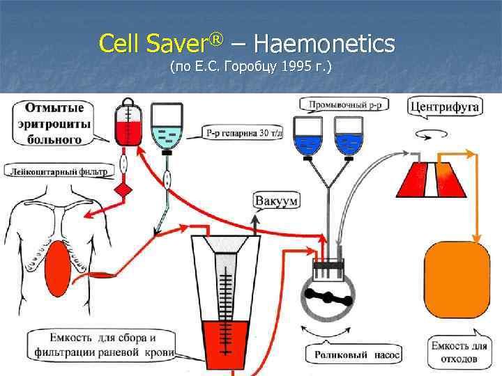 Cell Saver® – Haemonetics (по Е. С. Горобцу 1995 г. )