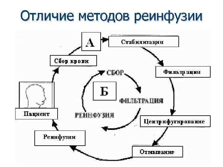 Отличие методов реинфузии