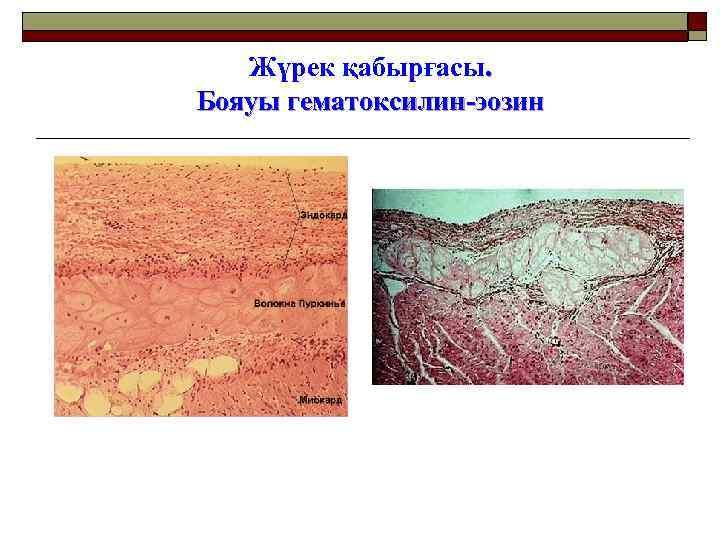 Жүрек қабырғасы. Бояуы гематоксилин-эозин