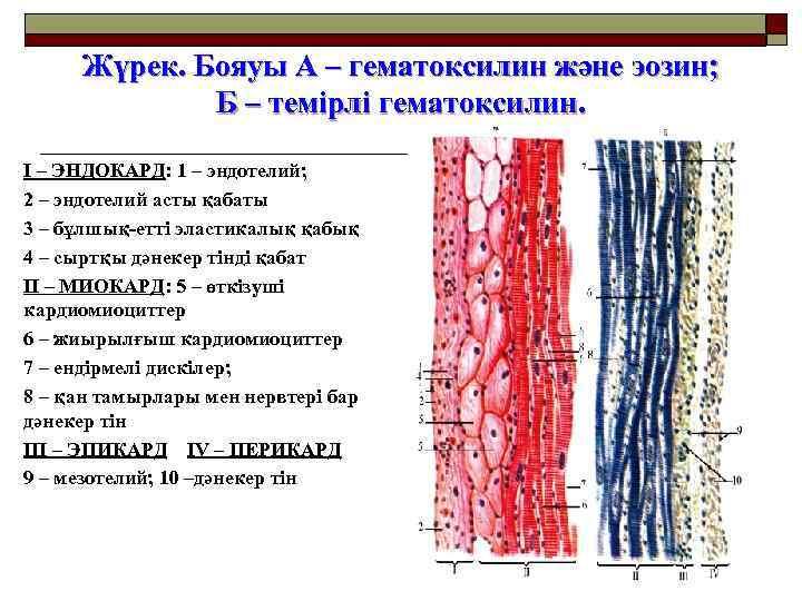 Жүрек. Бояуы А – гематоксилин және эозин; Б – темірлі гематоксилин. I – ЭНДОКАРД: