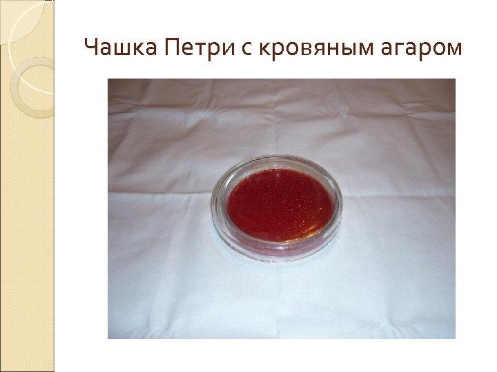 Чашка Петри с кровяным агаром