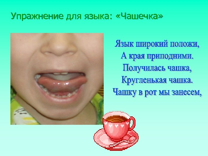 Упражнение для языка: «Чашечка»