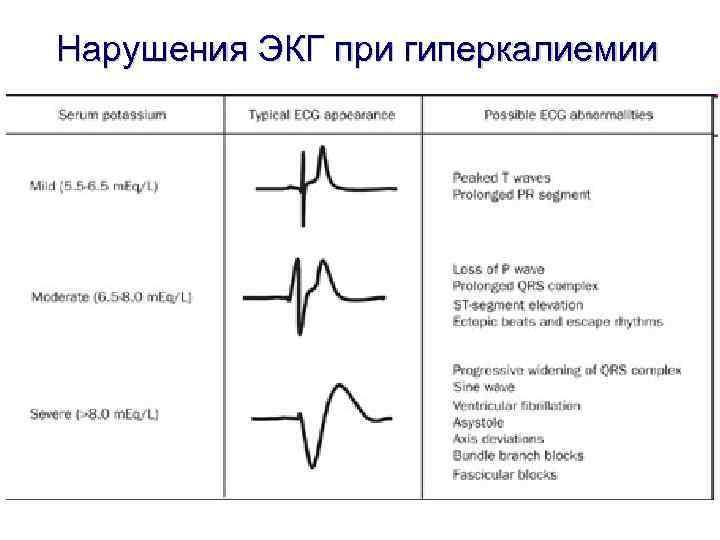 Нарушения ЭКГ при гиперкалиемии