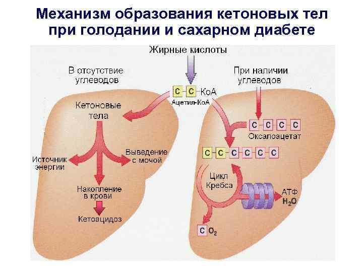 Механизм образования кетоновых тел при голодании и сахарном диабете