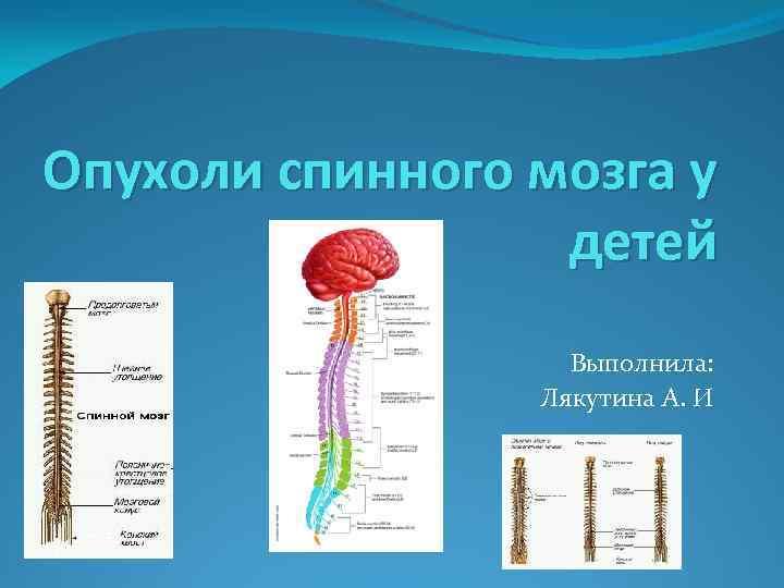 Опухоли спинного мозга у детей Выполнила: Лякутина А. И