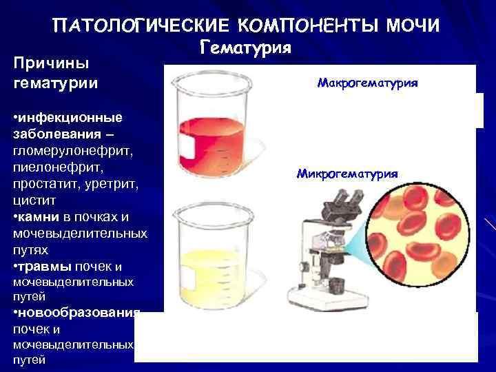 Простатит кровь в моче тибетский гриб простатит