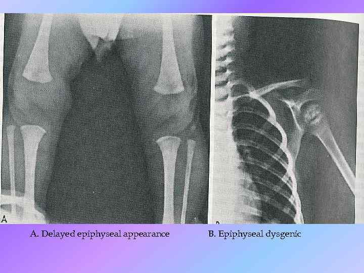 A. Delayed epiphyseal appearance B. Epiphyseal dysgenic