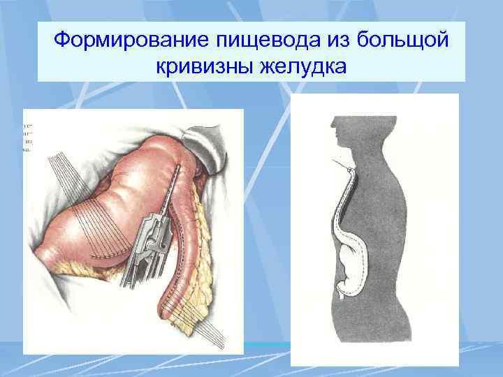 Формирование пищевода из больщой кривизны желудка