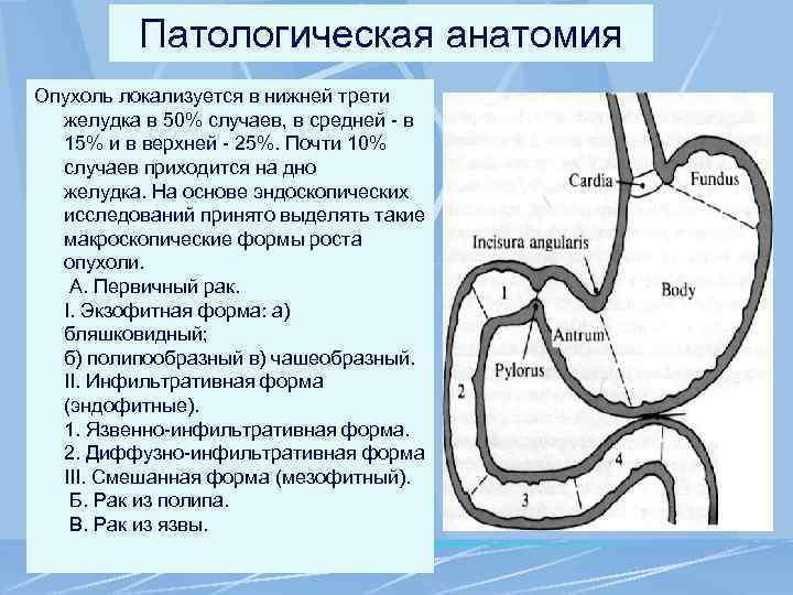 Патологическая анатомия Опухоль локализуется в нижней трети желудка в 50% случаев, в средней -