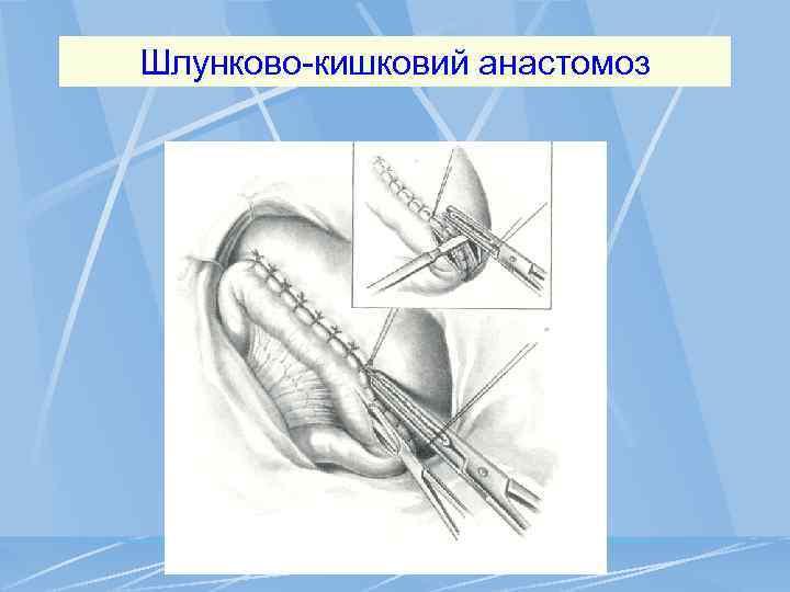 Шлунково-кишковий анастомоз