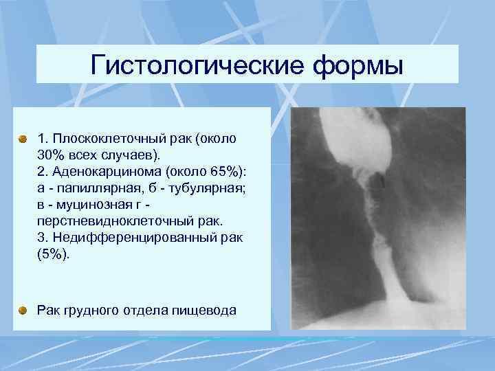 Гистологические формы 1. Плоскоклеточный рак (около 30% всех случаев). 2. Аденокарцинома (около 65%): а