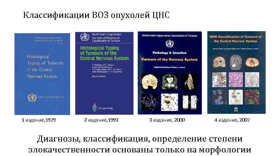 Классификации ВОЗ опухолей ЦНС 1 издание, 1979 2 издание, 1993 3 издание, 2000 4