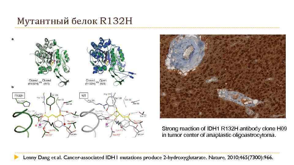 Мутантный белок R 132 H Strong reaction of IDH 1 R 132 H antibody