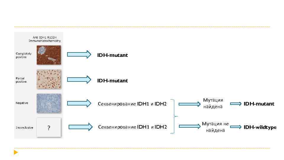IDH-mutant Секвенирование IDH 1 и IDH 2 Мутация найдена IDH-mutant Секвенирование IDH 1 и